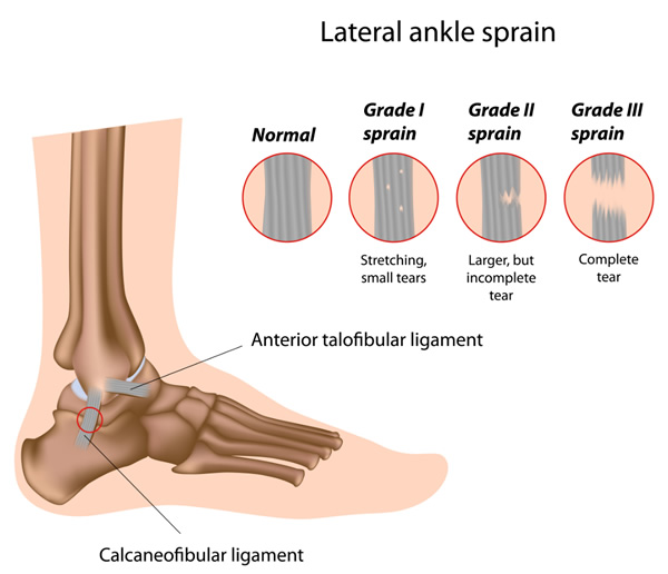 Ankle Injuries and Treatment