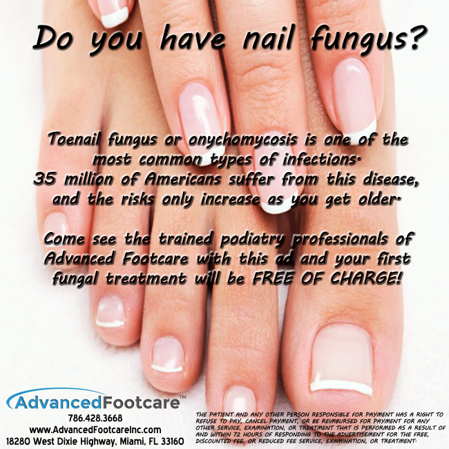 Do you have nail fungus?